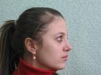 Екатерина климова пластика носа